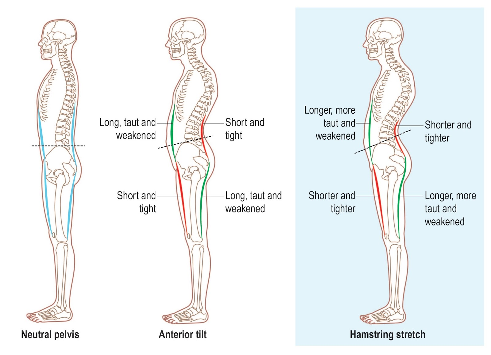 Muscle Imbalance The Long And The Short Of It